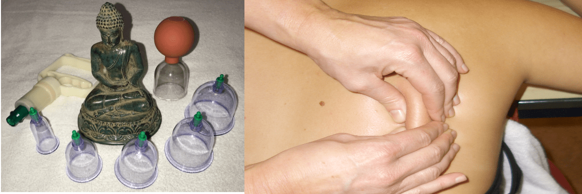 Bindweefselmassage cupping